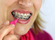 Hygienics. On orthodontic braces by a caucasian woman Stock Photos