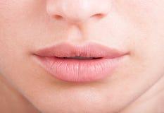 Hylauronic acid or botox female lips Royalty Free Stock Image