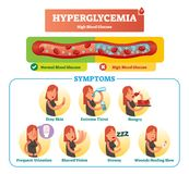 Hyperglycemia vector illustration collection set. Isolated symptom, diagnosis and signs as warning to disease and disorder. Hyperglycemia vector illustration royalty free illustration