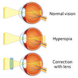 Hyperopia corrected by a plus lens. Hyperopia and Hyperopia corrected by a plus lens. Eye vision disorder Stock Photography