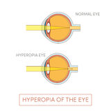 Hyperopia of the eye vector illustration