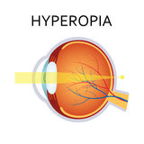 Hyperopia eyesight disorder. Royalty Free Stock Photo