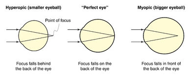 Hyperopic and myopic eyes. Drawing to show the difference between a normal eye and eyes with hyperopic and myopic shapes Stock Image