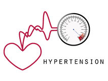 hypertension Arkivfoton