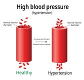 Hypertension, high blood pressure vector,. Two blood vessels, science and medical use, Vector Illustration royalty free illustration