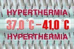 Hyperthermia arkivfoton
