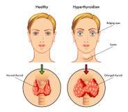 hyperthyroidism Royaltyfri Foto