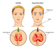 Hyperthyroidism. Medical illustration of the main symptoms of hyperthyroidism Royalty Free Stock Photo