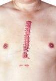Hypertrofisch groot litteken Stock Foto's
