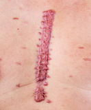 Hypertrophic scar Royalty Free Stock Images
