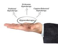 Hypnotherapy图  库存图片