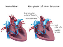 Hypoplastic αριστερό σύνδρομο καρδιών Στοκ φωτογραφίες με δικαίωμα ελεύθερης χρήσης