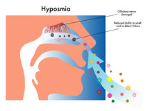 Hyposmia Stock Photo