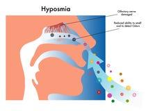 Hyposmia. Symbolic medical illustration of symptoms of hyposmia Stock Photo