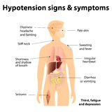 Hypotension signs & symptoms. Low blood pressure symptoms Stock Image