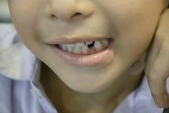 I denti da latte sono caduti appena nella bocca immagine stock libera da diritti
