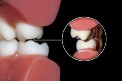 I denti dentari dei molari di occlusione si chiudono su immagini stock