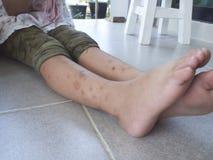 I morsi di zanzara le gambe immagini stock