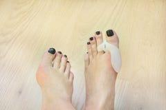 I piedi che indossano il cuscinetto ortopedico di alluce valgo sul pollice piantano Fotografia Stock