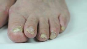 I piedi della donna con le micosi delle unghie del piede stock footage