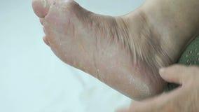I piedi della donna ha micosi delle unghie del piede archivi video