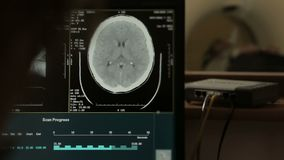I raggi x del tumore risultano sullo schermo con la macchina di RMI dietro, sistema diagnostico del computer stock footage