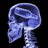 I raggi x dello scheletro con una bottiglia 3D rendono Fotografie Stock