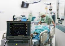 Iabp a employé après la chirurgie cardiaque ouverte Photos libres de droits