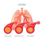 Icône de vecteur de maladies d'asthme dans le style plat illustration libre de droits