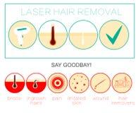 Icône, dépilage et epilation d'épilation de laser Photos stock