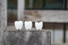 Icon of decayed tooth and healthy tooth stock photography