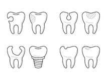 Icons of tooth treatment, reconstruction. Icons of tooth before and after treatment, reconstruction or prosthetic in thin line style. Sick and healthy enamel of Stock Image