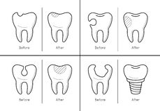 Icons of tooth treatment, reconstruction. Icons of tooth before and after treatment, reconstruction or prosthetic in thin line style. Sick and healthy enamel of Royalty Free Stock Photo