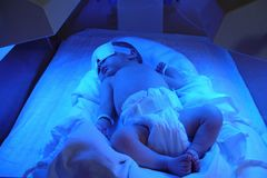 Ictericia recién nacida Imagen de archivo libre de regalías