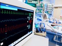 ICU pediatrico con il monitor di ECG Fotografie Stock