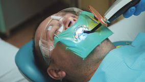 Ideia da luz de cura dental usando-se para o tratamento dos dentes 4K video estoque