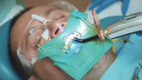 Ideia da luz de cura dental usando-se para o tratamento dos dentes vídeos de arquivo
