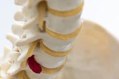 Ideia do close-up do modelo lombar herniated do disco foto de stock
