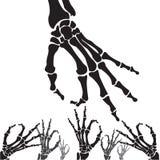 Ideia do raio X da mão, dedo quebrado Foto de Stock