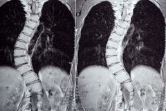 Idiopathic Scoliosis, neglected case. MRI Stock Photography