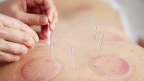 Igły z tyłu kobiety na akupunkturze zdjęcie wideo