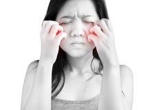 Ihr Gesicht oder Backe in einer Frau lokalisiert auf weißem Hintergrund verkratzen Beschneidungspfad auf weißem Hintergrund stockbild