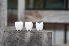 Ikone des verfallenen Zahnes und des gesunden Zahnes Stockfotografie