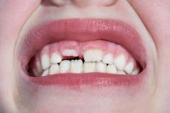 Il bambino ha un dente di latte e un nuovo dente adulto si sviluppa fotografia stock libera da diritti