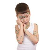 Il bambino malato ha il virus su pelle immagini stock