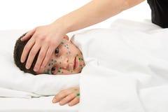 Il bambino malato ha il virus su pelle immagine stock
