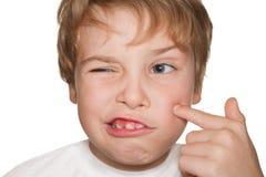Il bambino in morbo di Raynaud indica il pimple immagini stock libere da diritti