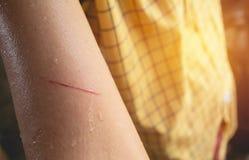 Il braccio del graffio della donna dal filo di acciaio rappresenta la ferita di sensibilità Fotografia Stock Libera da Diritti