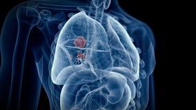 Il cancro polmonare illustrazione di stock