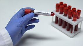Il carcinoma della prostata, medico mostra il campione di sangue in tubo, la ricerca del laboratorio, controllo di salute stock footage